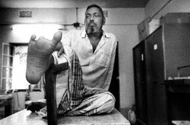 A leprosy patient waits for a doctor's consultation after a toe amputation.