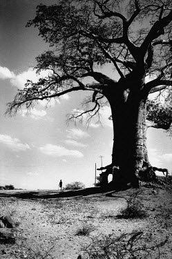 A boy with an amputated leg stands on crutches near a huge baobab tree with bare roots due to soil erosion.
