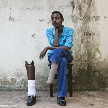 Ismael Khalif Abdulle (18), a refugee from Somalia. He was 'cross amputated' in Mogadishu by the Somali Islamist group al-Shabaab after he and three other young men were accused of stealing pistols an...