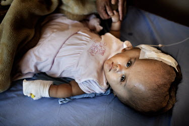 Victoria lies on a bed two days after she had her first surgery when 1.5 litres of fluid was drained from her head at the Annapurna Neurological Institute in Kathmandu. 19 month old Victoria (formerly...