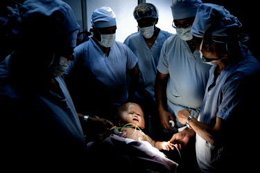 Victoria is surrounded by surgeons as she is taken to the operating theatre to have fluid drained from her head at Annapurna Neurological Institute in Kathmandu. 19 month old Victoria (formerly named...