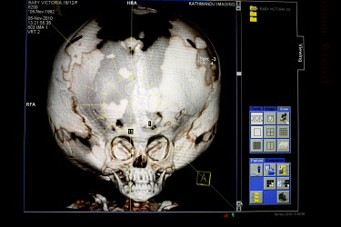 A CT scan of Victoria's head taken at the Annapurna Neurological Institute in Kathmandu. Since birth the growing amount of water inside her skull has been putting the cranium under pressure from withi...