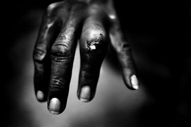 A garimpiero - the Brazilian name for a gold prospector - was cut by a machete and later contracted an infection in his finger.