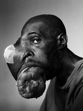 Thierno Malal Diallo, 38, has ameloblastoma, a usually benign tumor which tends to develop in the lower jaw and can lead to extreme abnormalities.'Five years ago, I felt something on my face. It was g...