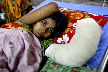 Marium, a textile worker who was employed in one of the textile factories which were housed in the collapsed Rana Plaza complex in Savar on the outskirts of Dhaka lies in her bed at Pongu Hospital wit...