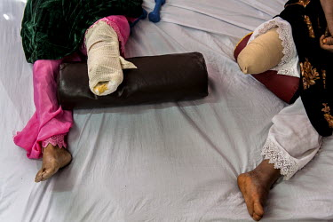 Afghan women who lost legs to landmines lie on a bed at the International Red Cross Orthopedic (ICRC) rehabilitation centre in Herat. The aims of the ICRC rehabilitation centre are to educate and reha...