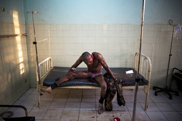 A soldier from the national army, Central African Army Forces (FACA), wounded in fighting with Seleka rebels waits to be treated at the Community Hospital. In 2013 a rebellion by a predominantly Musli...