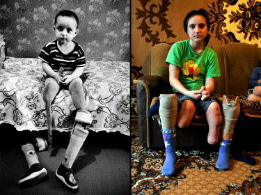 Markha Mutalipova (left in 1995, right in 2006) lost both her legs during a Russian rocket attack that killed 7 people in her village, including her mother, in 1995. Markha's mother embraced her to pr...