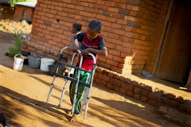 One of Patrick Mandeule's sons carries a walking frame to his father. Patrick has a leg tumour but while his relatives are very loving and supportive, but they cannot afford to support him. Fortunatel...