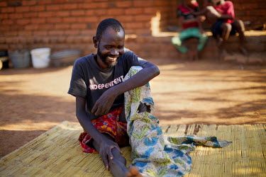 Patrick Mandeule rests in the fresh air outside his home. He has a leg tumour but while his relatives are very loving and supportive, but they cannot afford to support him. Fortunately his family is h...