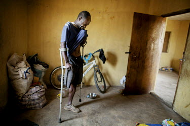 Gibrilla Sesay lost his wife to Ebola. The authorities came to his house after she died and burned everything. He lives in a village for amputees and since people are worried that he has Ebola too he'...