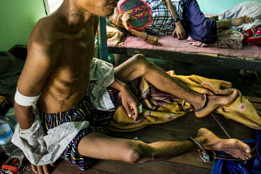 Maung Nan, 27, shackled to his hospital bed after he was arrested by police who then took him to hospital as they suspected he was infected with HIV. Nan has been mining jade since he was 10 years old...