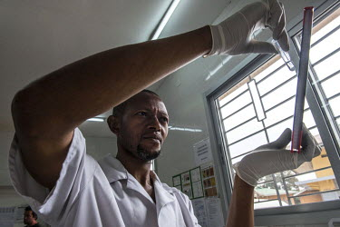 Medecins Sans Frontieres (MSF) laboratory technician Gentile Lusamba examines cerebral spinal fluids from an HIV patient in the laboratory of the Kabinda Hospital.