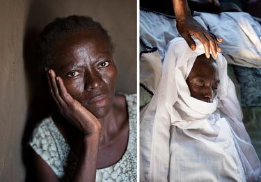 Lily Ipayi - left, seen seven months before her death. On the right, Lily is wrapped in a funerary sheet. She suffered from HIV/AIDS for a decade.