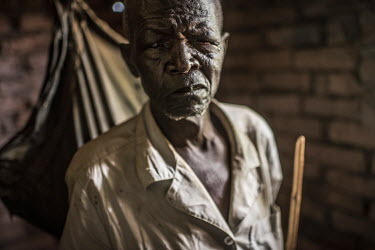 Nasari Gwaira, who suffers from the eye disease trachoma, at his home prior to an eye operation.