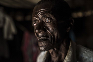 Isiko Viriano, who suffers from the eye disease trachoma, at his home.