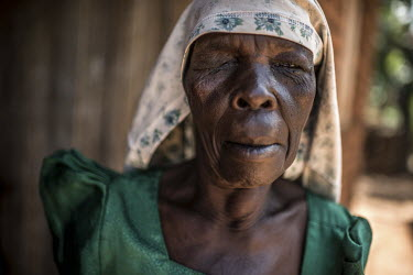 Babawemba Tapenesi, who suffers from eye disease trachoma, at her home in Namutumba, ahead of an eye operation at the Nsinze health centre.