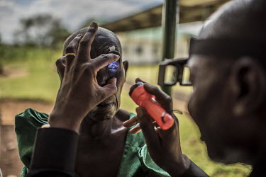 Simon Kibwika, a member of a village health team, examines the eyes of a woman who suffers from the eye disease trachoma, at the Nsinze health centre where she has come for surgery.