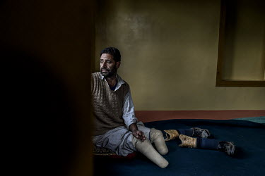 Nazir Ahmad Sheikh rests at his home after removing his prosthetic legs. Sheikh lost his legs as a result, he claims, of torture he was subjected to by the Indian Army during an uprising against India...