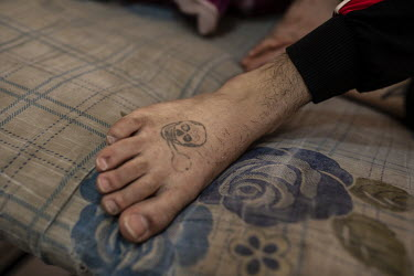 An inmate reveals a tattoo of a skull on their foot at a special rehabilitation prison for drug addicts arrested and convicted as a result of operations targeting the illegal drug trade in southern Ir...