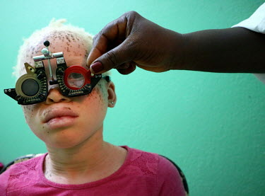 Neusa (9), a girl with albinism, has her sight tested by an ophthalmologist