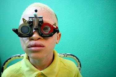 Sergio (9), a boy with albinism, has his sight tested by an ophthalmologist.