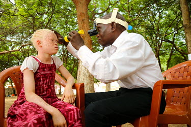An ophthalmologist examines the eyes of a girl with albinism.