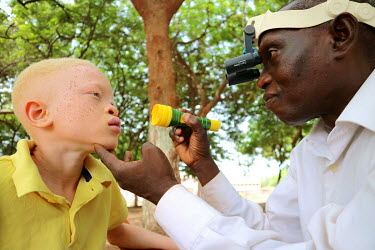 An ophthalmologist examines the eyes of a boy with albinism.