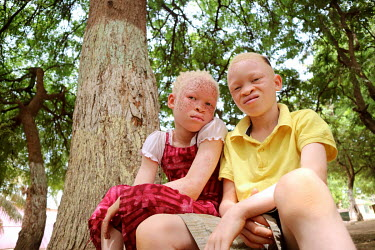 Sergio and Neusa two children with albinism.