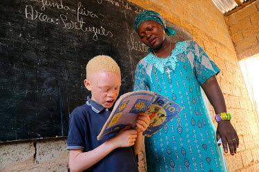Sergio (9), who is an albino and has issues with his sight, reads in class while his teacher Quinta Cabral Leal looks on.