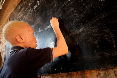 Sergio (9), who is an albino and has issues with his sight, writes on the class blackboard during a lesson at his school.