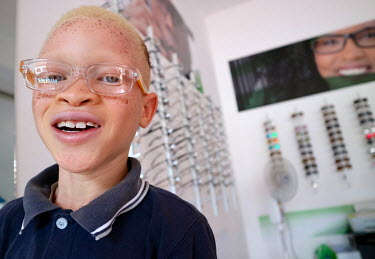 Sergio (9), who is an albino and has issues with his sight, smiles as he visits an opticians to get his new glasses