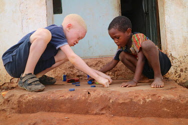 Sergio (9), who is an albino and has issues with his sight,  plays outside with his brother Ritos Mendonca (4).