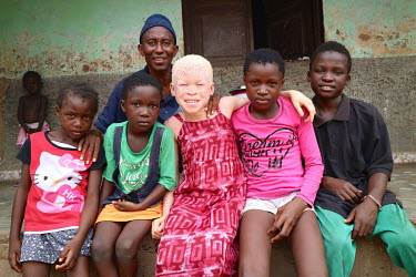 Neusa (9), an albino child who has sensitive skin and eyes, outside her home with her uncle Antonio Indafa, who looks after her. She was living with her father in a village, but he did not take approp...