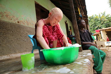 Neusa (9) at home washing dishes to help her aunt. Neusa is an albino child and has sensitive skin and eyes. She was living with her father in a village, but he did not take appropriate care of her an...