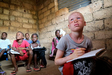 Neusa (9) sits at the front of her classroom so she can see the blackboard more easily. Neusa is an albino and has issues with her sight and skin.