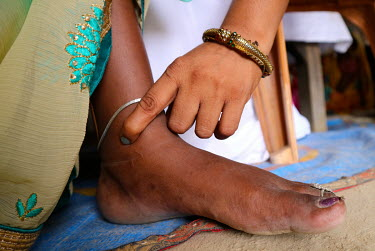 A health worker takes the pulse of a pregnant woman during an ante-natal check up.