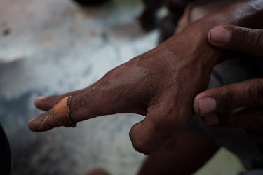 Suprianto showing fang marks from the bite of a non-venomous snake at the family home in Kediri. His father, Samijan, is a traditional healer who specialises in herbal potions that feature cobra blood...