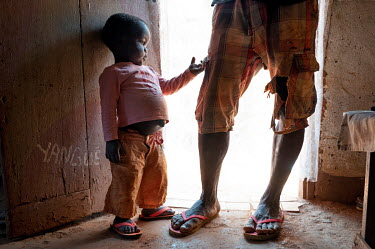 Junior with his son Dieudone (3), whose swollen abdomen is a clear sign of malnourishment, at their home in district 7. Junior, however, has no information as to how to spot symptoms of malnutrition a...