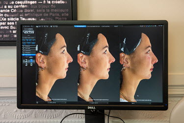 A monitor displays 3D modelling images of Emile's face. At left: her face before; at centre: the 3D model projecting her appearance with the changes the use of injections of hyaluronic acid fillers wo...
