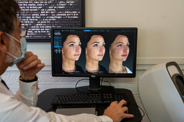 Dr Herve Raspaldo looks at a monitor displaying 3D modelling images of Emile's face. At left: her face before; at centre: the 3D model projecting her appearance with the changes the use of injections...
