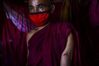 A Buddhist monk, U Pyina Nanda, shows a wound on his arm from a bullet fired by the security forces as they chased anti-coup protestors in Tharketa township.