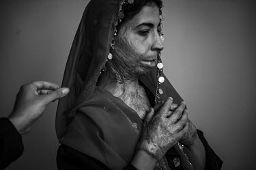 Zahra, who set herself on fire in 2006, reveals her burn scars at a hostel which provides training in vocational skills in Herat. The hostel is run by the Association for Cooperation with Afghanistan...