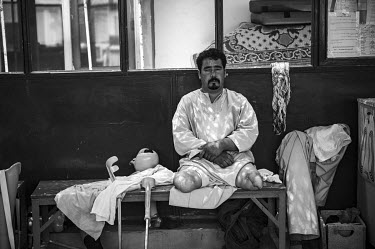 A man who has lost both of his legs due to landmines, waits at the International Red Cross Orthopedic (ICRC) rehabilitation centre.