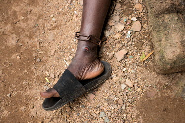 A patient whose has had their ankles shackled, causing an open sore to develop, at the Emmanuel Rehabilitation Centre for Mentally Ill People which is run by Miss Mojisola Adeniyi. They treat patients...