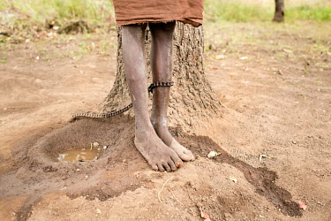 Umama Belakoba has schizophrenia and does not know her age. She is cared for by her mother at Nyinbunya Prayer Camp and Pentecostal Church in the Northern Region of Ghana where she has been chained fo...