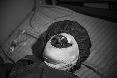 An Afghan woman, who self-immolated, lies in a bed at a hospital in Herat.